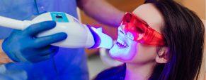 Когда стоит отбелить зубы?